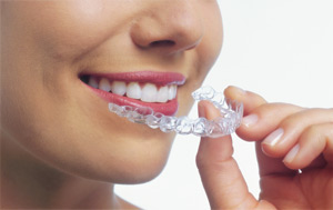 east iowa invisalign provider
